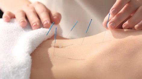 Akupunktur nedir? Akupunktur ne için kullanılır? Akupunkturun faydaları nelerdir?