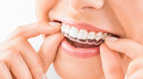 Ağız, diş ve çene cerrahisi nedir? Hangi hastalıklara bakar?