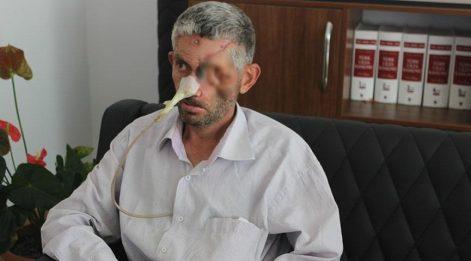 'Dişini çektirdi, gözünü kaybetti' iddiası