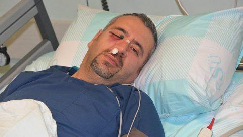 Hasta yakınının saldırısına uğrayan sağlık teknikerinin elmacık kemiği kırıldı
