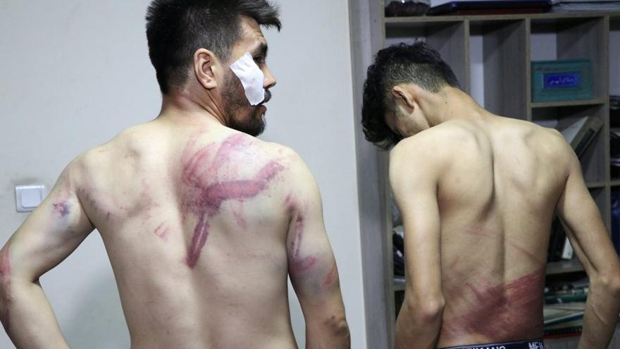 Taliban Afgan gazetecileri dövüyor